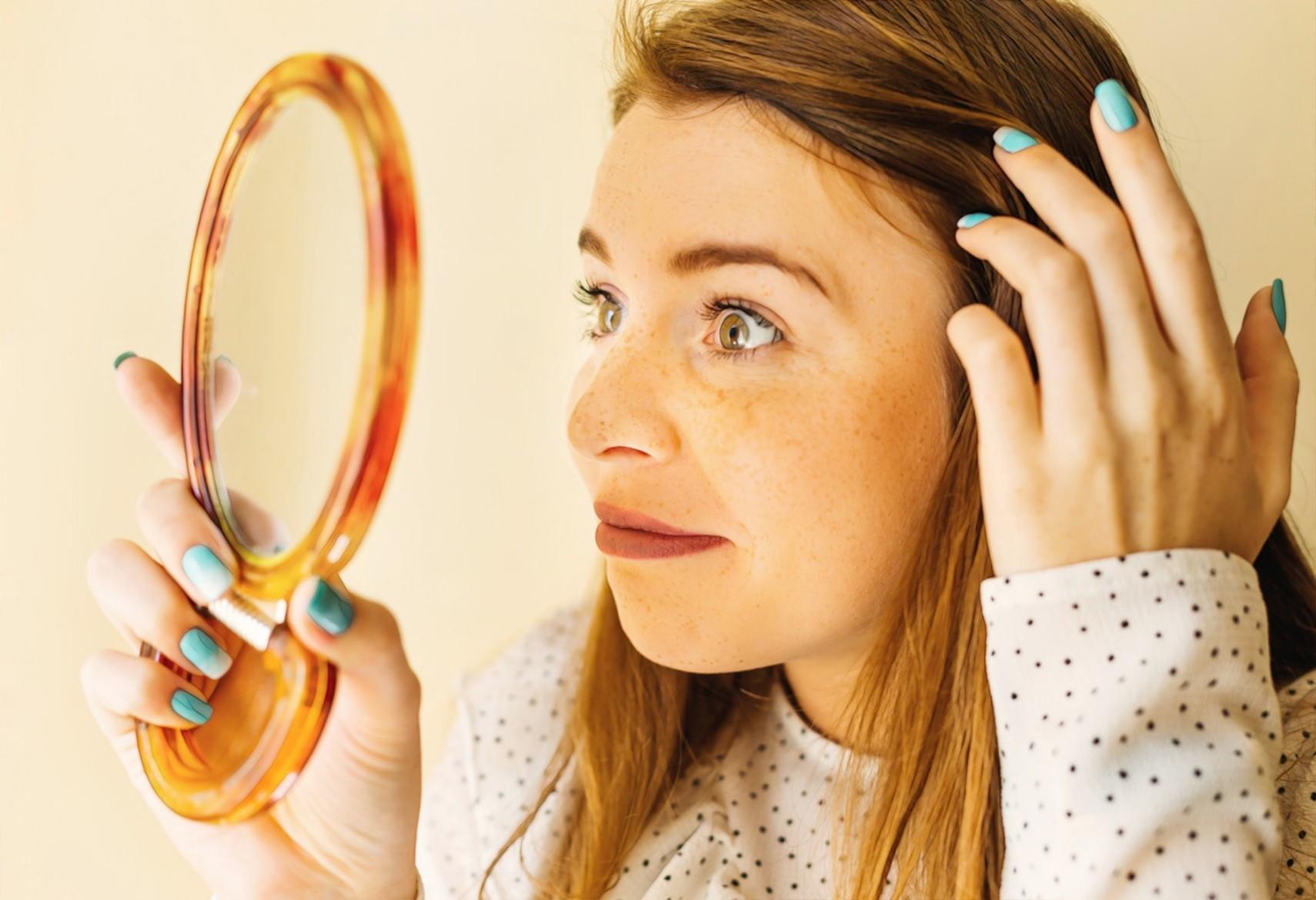 Девушка с пятнами на кожи смотрит в зеркало и думает, что можно с ними сделать